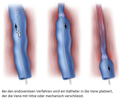 Bei den endovenösen Verfahren wird ein Katheter in die Vene platziert, der die Vene mit Hitze oder mechanisch verschliesst.