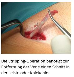 Die Stripping-Operation benötigt zur Entfernung der Vene einen Schnitt in der Leiste oder Kniekehle.