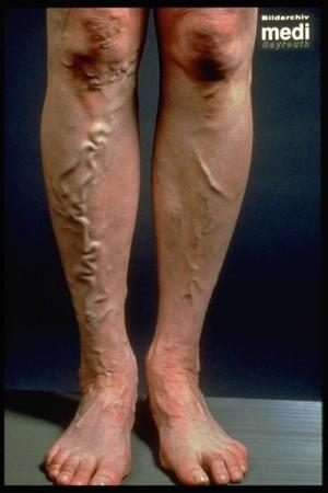 Grundsätzliches zur Behandlung grosser Krampfadern mit dem Laser